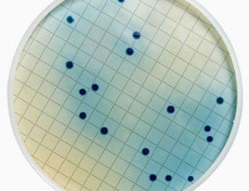 Bacteria Testing